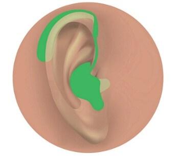 Behind the ear (BTE) hearing aid