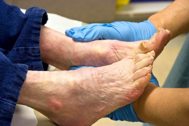 Elderly foot care guide