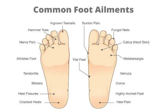 Common foot ailments